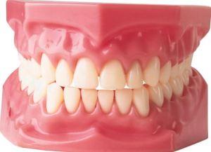 Gum-treatments.jpg