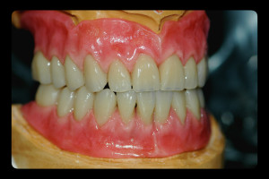 dentures1-argo-dental-Telford-Shrewsbury