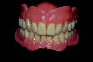 dentures2-argo-dental-Telford-Shrewsbury
