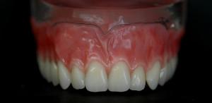 dentures3-argo-dental-Telford-Shrewsbury