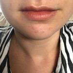 Lip-Filler-After.jpg