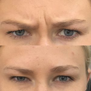 Botox-1-Before.jpg
