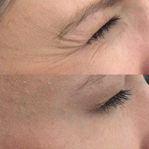 Botox-2-Before.jpg