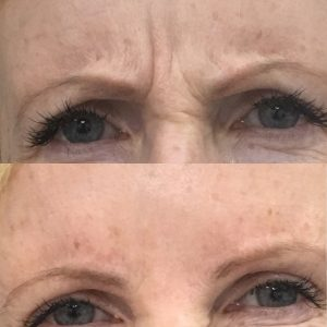 Botox-3-Before.jpg