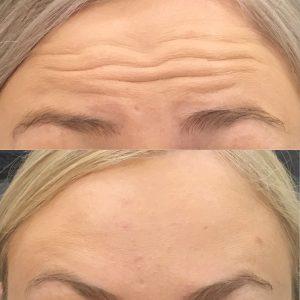Botox-4-After.jpg