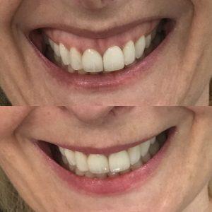 Gummy-Smile-1-After.jpg